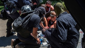 A victim is attended after he was stabbed during a rally at the State Capitol in Sacramento, Calif., on Sunday, June 26, 2016. Sacramento Fire Department spokesman Chris Harvey says a rally by KKK and other right-wing extremists groups turned violent Sunday when they were met by counterprotesters. (Rene C. Byer/The Sacramento Bee via AP) (KCRA3, KXTV10, KOVR13, KUVS19, KMAZ31, KTXL40);