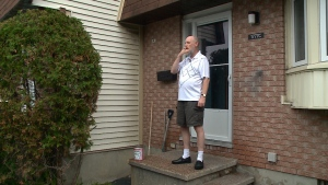 Chris Reed, who intervened during a vicious dog attack over the weekend, stands outside his house in Orléans.
