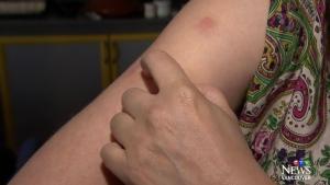 Woman stung by scorpion