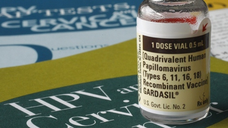One dose of the vaccine Gardasil, developed by Merck & Co., is displayed in this Friday, Feb. 2, 2007 file photo, in Austin, Texas. (THE CANADIAN PRESS/ AP - Harry Cabluck)