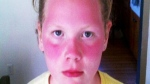 Violet Michener is seen with a severe sunburn after returning came home from field day in Tacoma, Wash.